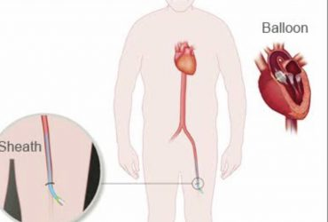How to Avoid Heart Attack | COVID-19 Can Damage Your Heart