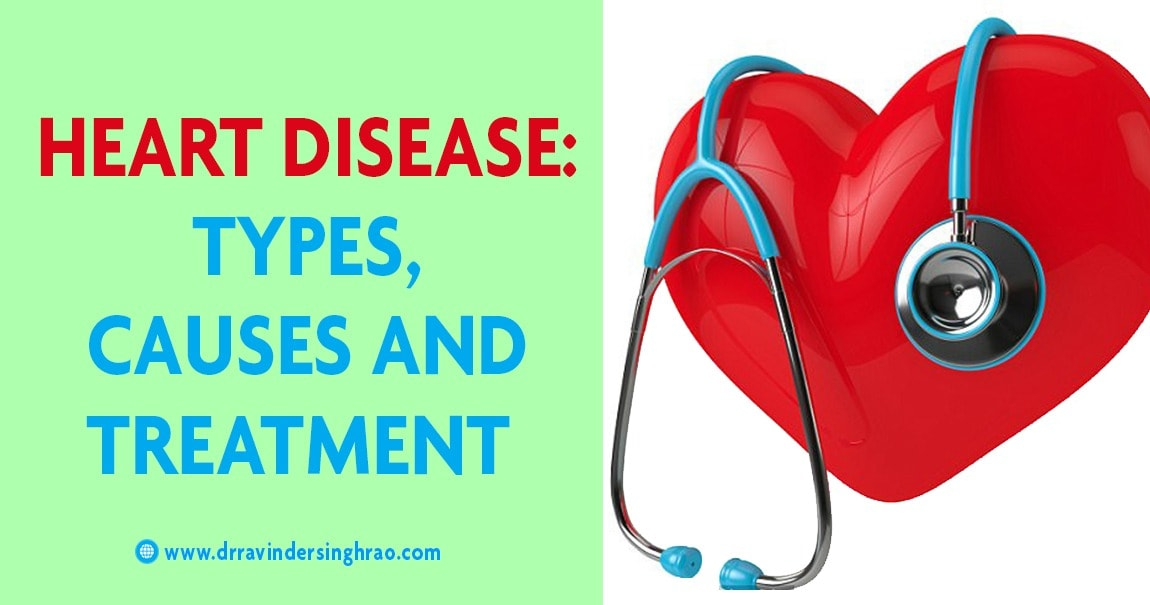 Heart disease: Types, Causes, and Treatments, Risk Factors, Symptoms