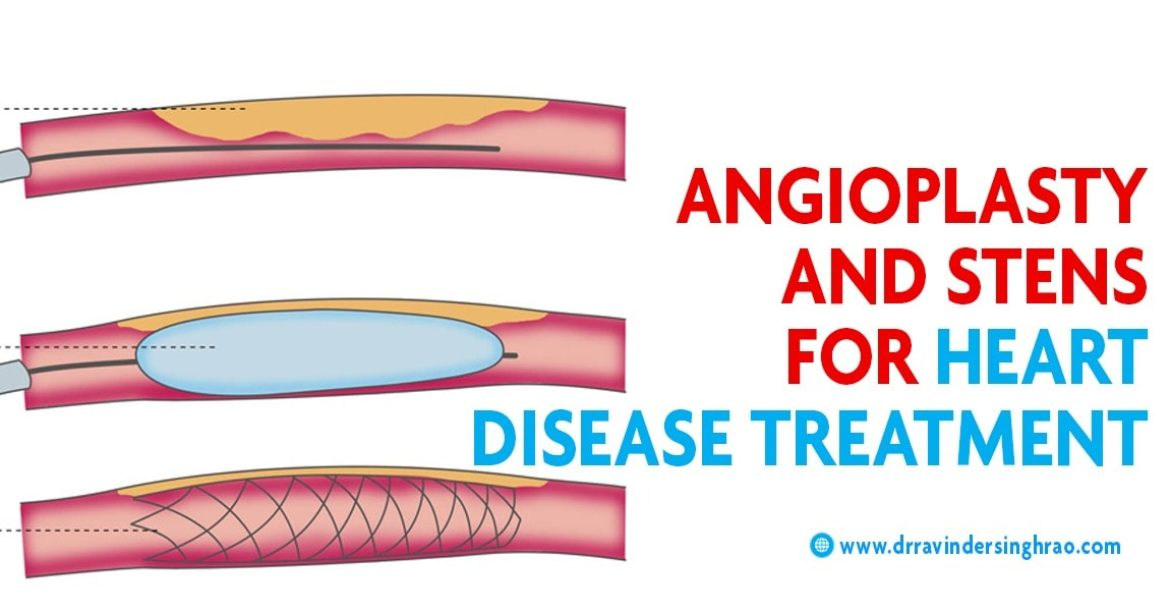 Coronary angioplasty and stents, Angioplasty and stent Placement