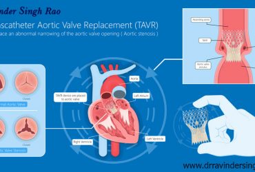 Transcatheter Mitral Valve Replacement (TMVR) expert in India | Top Transcatheter Mitral Valve Replacement specialist in India