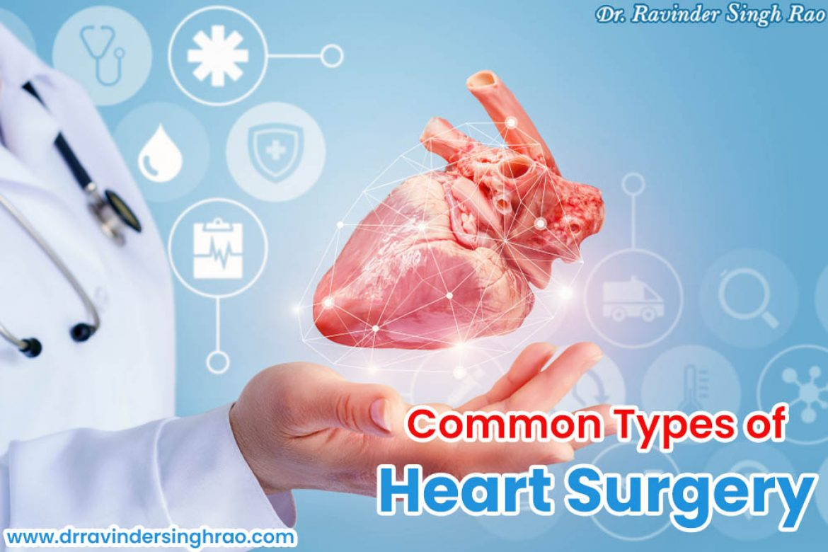 Common Types of Heart Surgery | Best Heart Expert in India
