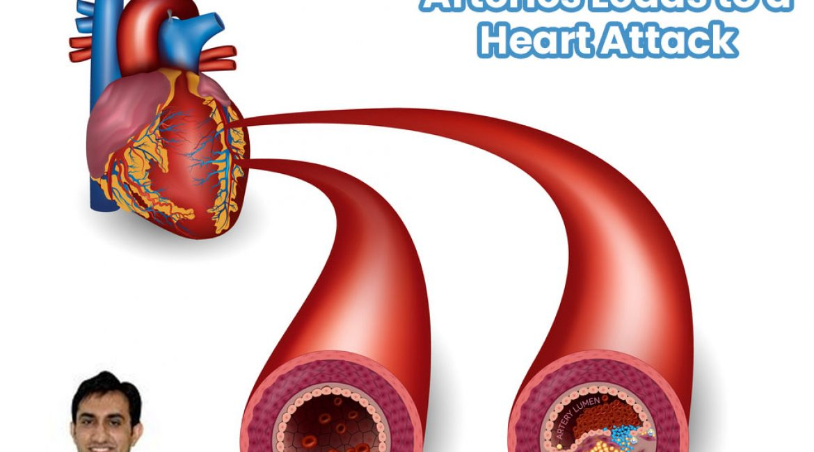 Narrowing Of The Arteries Leads To A Heart Attack